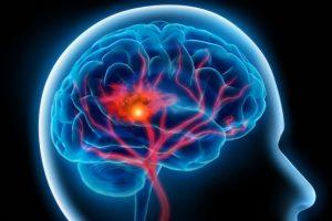 Đột quỵ não xuất hiện do tắc nghẽn hoặc vỡ mạch máu não