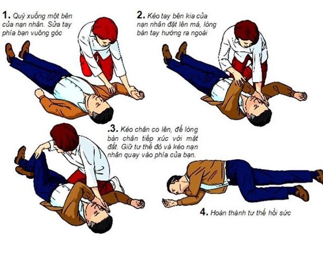 Cách sơ cứu người đột quỵ an toàn