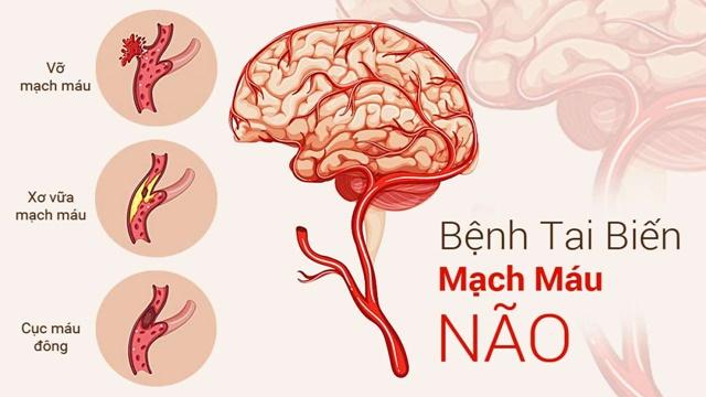 Đột quỵ và tai biến là tên gọi khác nhau của cùng 1 tình trạng rối loạn chuyển hóa máu lên não